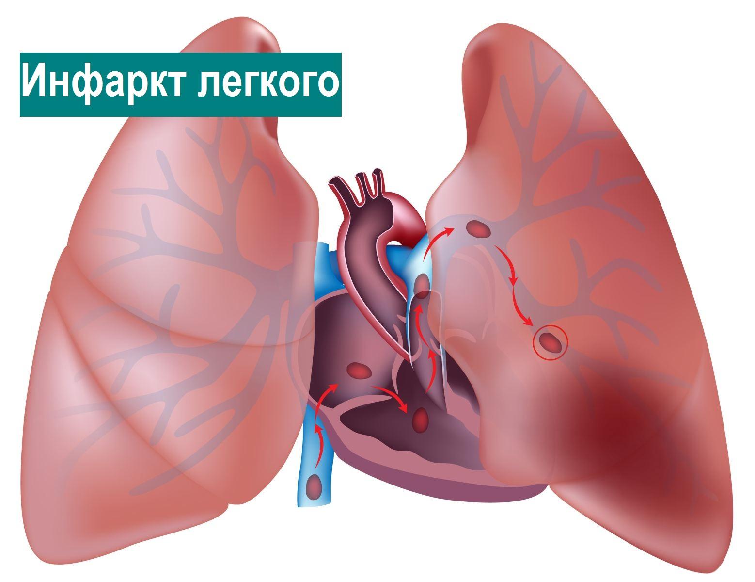 инфаркт легкого