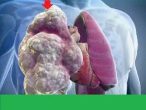 Что происходит во время аллергического альвеолита