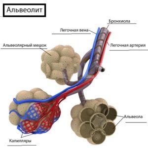 Альвеолит лёгких на схеме
