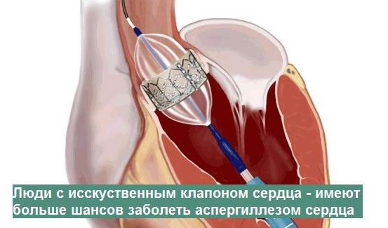 клапан сердца