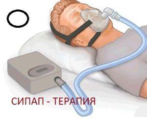 Аппарат СИПАП