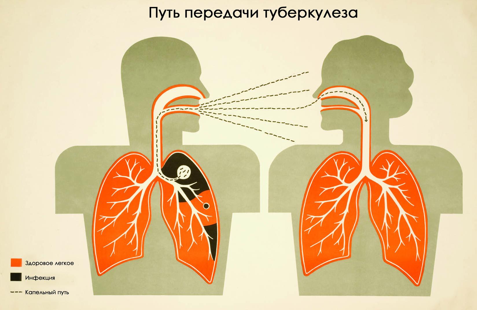 Ранние признаки туберкулеза