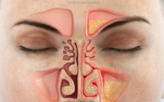 Левосторонний гайморит — 10 причин, симптомы и лечение