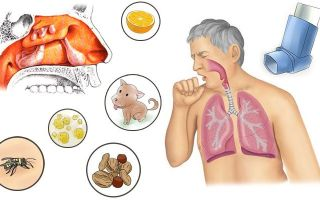 Аллергический гайморит — 5 причин возникновения, лечение и симптомы
