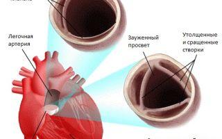 Стеноз легочной артерии — 7 признаков заболевания