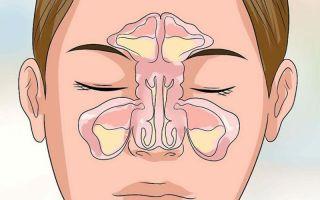 3 формы экссудативного гайморита — симптомы и лечение