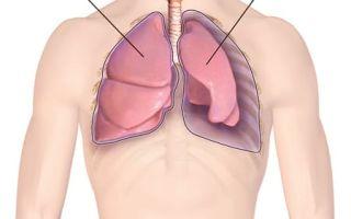 Сколько всего видов пневмоторакса и как их лечить?