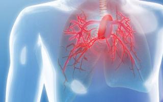 5 лет, в среднем — живут при лёгочной гипертензии