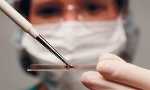 Диагностика тубркулёза (анализы: крови, мочи, мокроты и т.д.)
