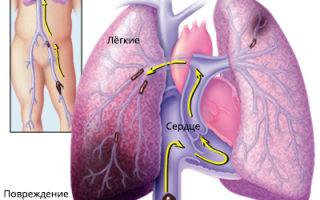 4 вида ТЭЛА (тромбоэмболия легочной артерии)