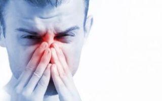 Нейровегетативный вазомоторный ринит: симптомы и лечение