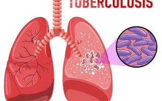 Как не заразиться туберкулёзом — пути передачи. Аккуратно