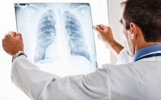 5 методов диагностики пневмонии, какой лучше?