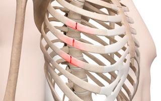 4 основных признака перелома грудной клетки и ПМП