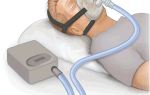 Поможет ли машина для сна СPAP (СИ-ПАП) при аноэ?