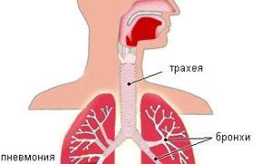 3 признака воспаления лёгких у детей без температуры