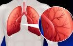 Смертельна ли 1 степень лёгочной гипертензии? Что делать?