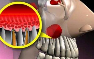 2 причины боли в зубах при гайморите — диагностика и лечение