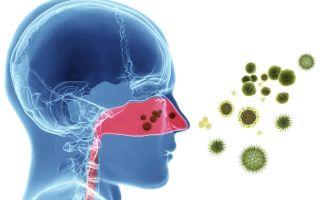 5 симптомов вирусного ринита — варианты его лечения