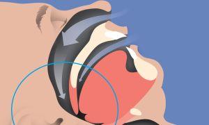 4 опасных последствия при апноэ и эффективное лечение