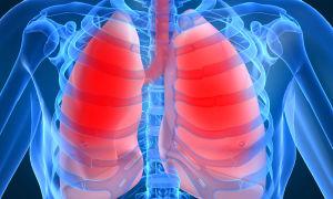 14 признаков пневмонии