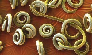 8 способов узнать есть ли у вас паразиты (гельминтозы)