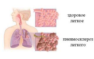 Сколько живут с диффузным пневмосклерозом легких?