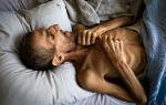 Сколько можно прожить при туберкулёзе?