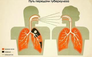 Первые признаки туберкулёза, кто чаще болеет?