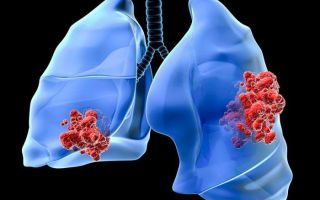 8 симптомов рака лёгких перед смертью. Что чувствует больной?