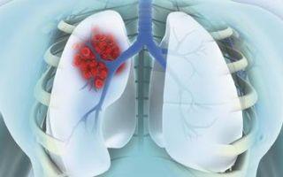 5 разновидностей периферического и плоскоклеточного рака легких