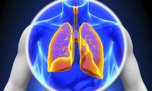 7 причин жидкости в лёгких, как лечить?