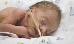 Остановка дыхания при апноэ младенцев, что делать? (видео)