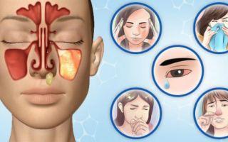 Заложенность носа: психосоматика и варианты лечения