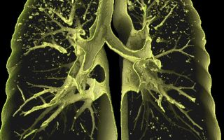 Опасность диссеминированного туберкулеза (отравление организма)