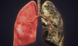 Как распознать рак лёгких 10 симптомов и признаков.