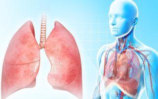 Классификация пневмонии: степени тяжести, разновидности течения, локация, очаг воспаления и др.
