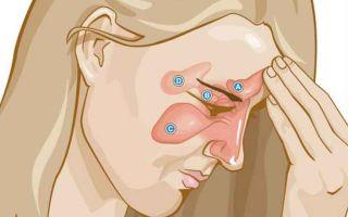 4 особенности катарального гайморита. Симптомы и лечение