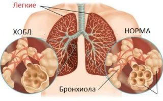 ХОБЛ – что это за заболевание и можно ли от него умереть?