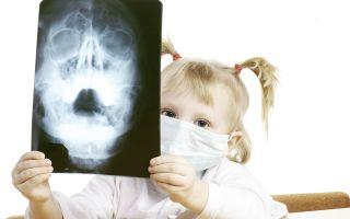 Гайморит у детей (2,3,4,5,6,7 лет) — чем лечить ребёнка и как не навредить?