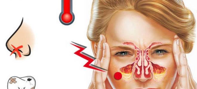 Что будет если не лечить гайморит? Последствия и осложнения данного заболевания