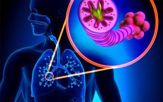 Как определить и вылечить хроническую обструктивную болезнь лёгких