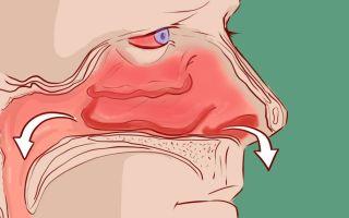 Признаки и симптомы гайморита — первые и последующие