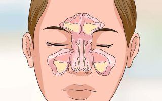 Вирусный гайморит — 7 причин, симптомы и лечение