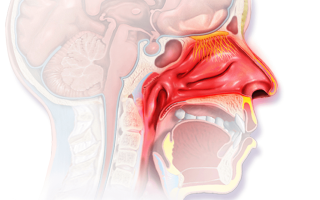 Хронический синусит — 3 причины и факторы риска развития заболевания