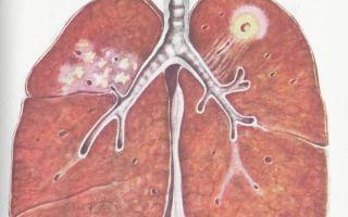 Особенности инфильтративного туберкулеза, заразен ли?