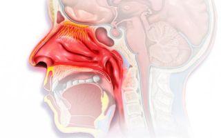 Вазомоторный ринит — 8 причин возникновения, диагностика и особенности лечения