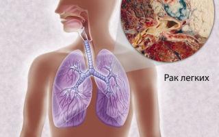 6 признаков рака лёгких на ранней стадии. Как диагностировать?