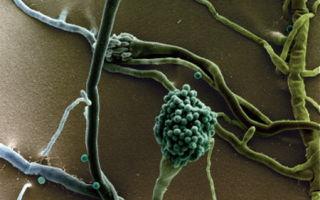 Пневмомикоз — кому грозит заболевание и чем оно опасно?