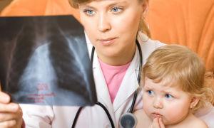 5 признаков и причин воспаления лёгких у детей